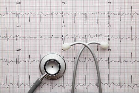 Stethoscope on the ECG. medical symbolic close-up photo