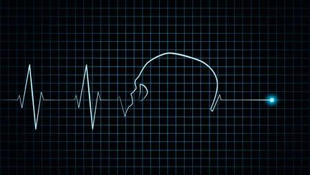 cardiograph: Heartbeat stop cardiogram