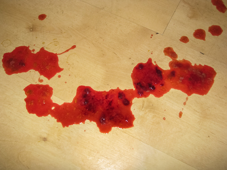 Blood on floor. Results of pet dog with colitis passing fresh blood along with small amounts of faeces and mucus. Stock Photo