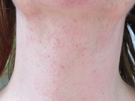 Rash on neck caused by vomiting. None fading under a glass. The pressure from retching on small blood vessels causes them to burst creating this symptomatic pinprick rash. Similar to meningitis rash.