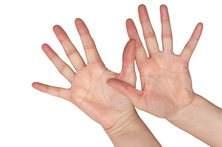 Caucasian womans hands with fingers spread wide in frightened gesture. Open palms. Isolated on white.