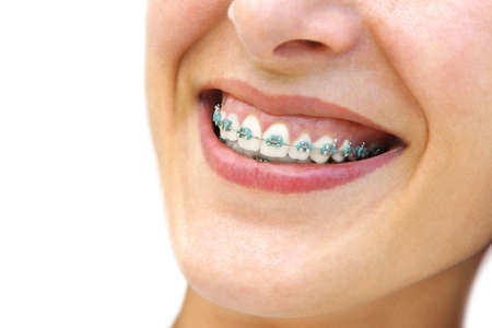 Detail of young womans smile showing white teeth with braces.