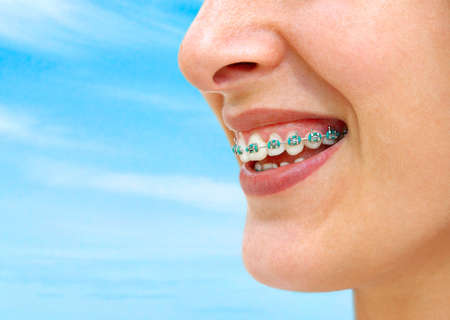 Detail of young womans smile showing white teeth with braces. Stock Photo