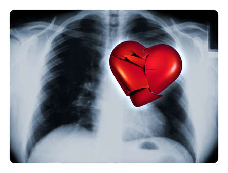 heartache: X-ray of a male chest showing one broken red heart