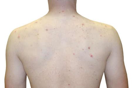 Foto von Teenage Boy Extreme Oberkörper Akne Problem