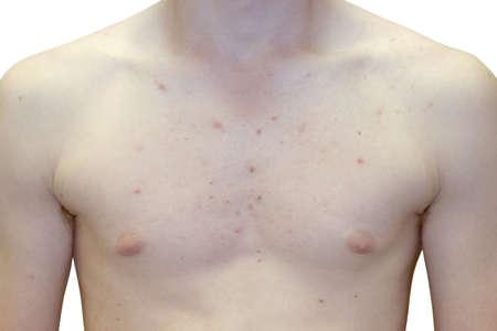 Foto van Teenage Boy Extreme Upper Body Acne Probleem Stockfoto