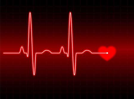 elettrocardiogramma: Illustrazione di un elettrocardiogramma (ECG) # 2. Vedere il mio portafoglio di pi�.  Archivio Fotografico