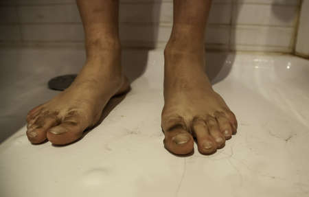 Dirty and black feet cleaning in shower, disinfection and personal hygiene