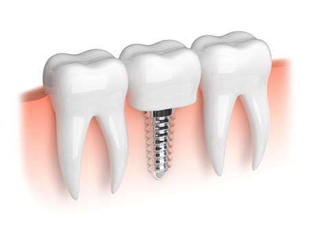 prosthetics: Model of white teeth and dental implant