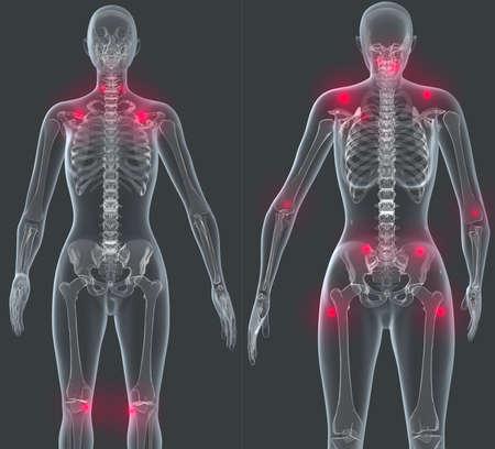 arthritis pain: Pain areas