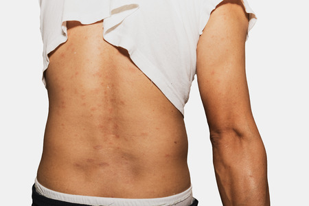 aching: Back view of man with dermatitis problem of rash ,Allergy rash and Health problem. Stock Photo