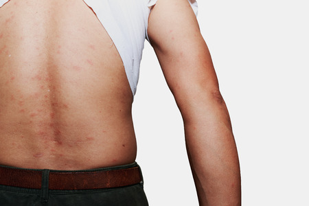 rash: Vista trasera del hombre con problema de la dermatitis de la erupci�n, erupci�n de la alergia y el problema de salud. Foto de archivo