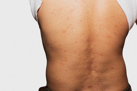 sarpullido: Hombre con problema de la dermatitis del exantema, erupci�n de la alergia y el problema de salud.