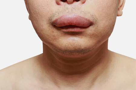The skin around the mouth caused by an allergic reaction to medication.