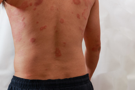 Around Back view of man with dermatitis problem of rash ,Allergy rash and Health problem.