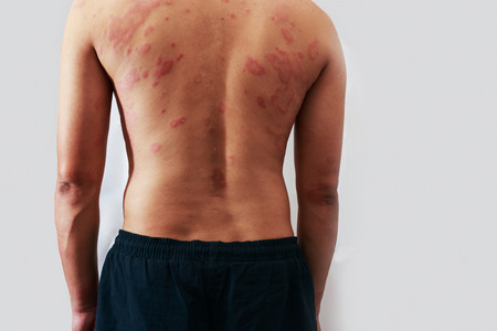 sarpullido: Alrededor Vista trasera del hombre con el problema de la dermatitis del exantema, erupci�n de la alergia y el problema de salud. Foto de archivo