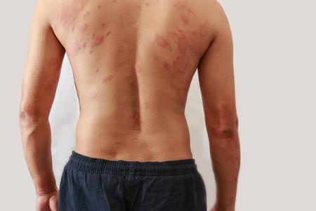 sarpullido: Alrededor Vista trasera del hombre con el problema de la dermatitis del exantema, erupción de la alergia Foto de archivo