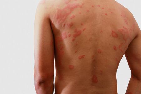 atopic: Man with dermatitis problem of rash ,Allergy rash