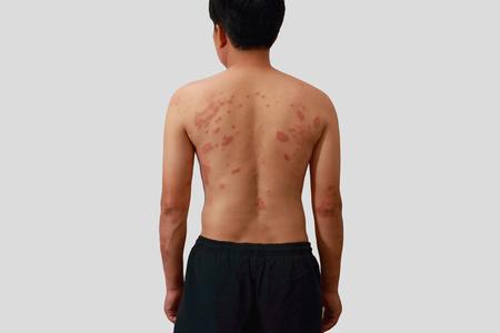 rash: Around Back view of man with dermatitis problem of rash ,Allergy rash