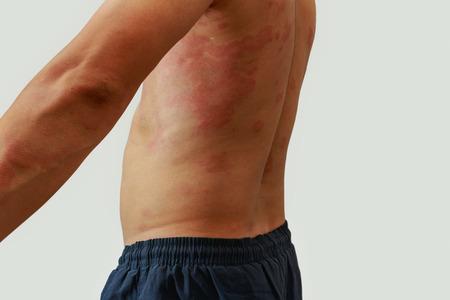 rash: Hombre con problema de la dermatitis del exantema, erupci�n de la alergia