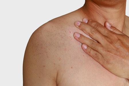 sarpullido: Hombre con problema de la dermatitis del exantema, erupción cutánea zona de los hombros de la alergia Foto de archivo