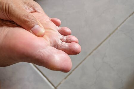 Men's toe is a fungus, Foot is a fungal infection