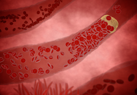 Clogged Artery with platelets and cholesterol plaque, concept for health risk for obesity or dieting and nutrition problems Foto de archivo