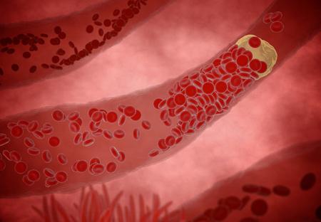 Verstopte slagader met bloedplaatjes en cholesterol plaque, concept voor de gezondheid risico voor obesitas of dieet en voeding problemen