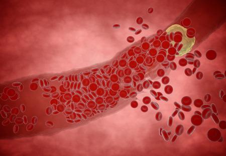 globulo rojo: Arteria obstruida con las plaquetas y la placa de colesterol, el concepto de riesgo para la salud de la obesidad o la dieta y los problemas de nutrición Foto de archivo
