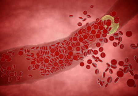 blood flow: Clogged Artery with platelets and cholesterol plaque, concept for health risk for obesity or dieting and nutrition problems Stock Photo
