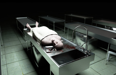 autopsy: cadaver, dead male body in morgue on steel table. Corpse. Autopsy concept. 3d rendering.
