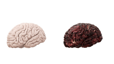 healthy brain and disease brain on white isolate. Autopsy medical concept. Cancer and smoking problem. Stock Photo