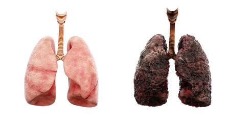 健康な肺と白い分離の病気肺。解剖医学的概念。がんと喫煙問題。