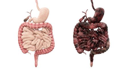 intestino: los intestinos sanos y los intestinos de la enfermedad en el aislante blanco. concepto médico de la autopsia. Cáncer y problema del tabaquismo.
