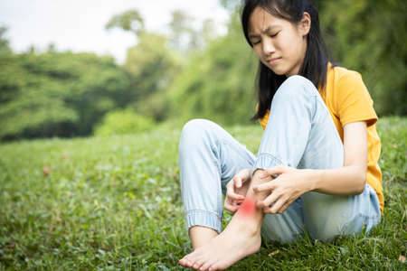 Asian child girl scratching itch on her leg with hand,female teenage with red rash,mosquito bite,fungal infection,insect bites,legs itching allergy,rash while sitting on the grass at park,Anaphylaxi