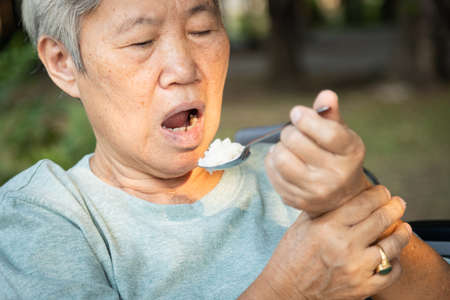 Asian senior woman holding spoon and hands tremor while eating rice,cause of hands shaking include parkinson's disease,stroke, brain injury,symptom of essential tremor,health problem of elderly people