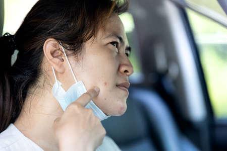 Femme asiatique souffrant d'acné sur le visage causée par le port d'un masque facial lors de l'épidémie de coronavirus Covid-19, irritation de la peau due à la sueur, la femme est allergique au masque provoquant un problème d'acné vulgaire, soins de la peau