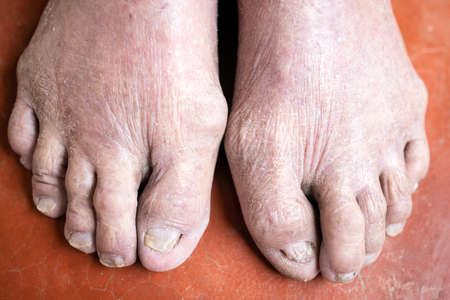 Psoriasis,Atopic dermatitis,dry skin of the toes,cracked skin of feet and disease of Onychomycosis,Tinea Unguium,toenail fungus infection on nails of elderly patient,health care,problems of old people
