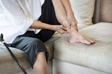 Achilles tendinitis,painful of leg and ankle in joint of the bone,senior woman suffer from plantar fasciitis,tendon connecting calf muscles to the heel,injury to stiffness of the ligaments in the body 版權商用圖片