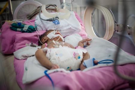 icu: Newborn in hospital