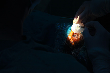 crystalline lens replaceable surgical method Stock Photo