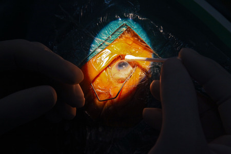 physicals: eye surgery - eye operation