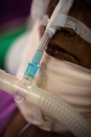 medical ventilator: Patient on nasotracheal  tube