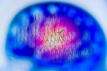 EEG with electrical activity of abnormal brain, electroencephalogram,EEG Banco de Imagens