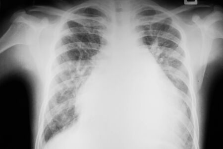 Chest x-ray image of dextrocardia and situs inversus patient that demonstrated heart, lungs, ribs, bones and muscles look like clearly film for diagnostic from radiologists in the hospital Stock Photo