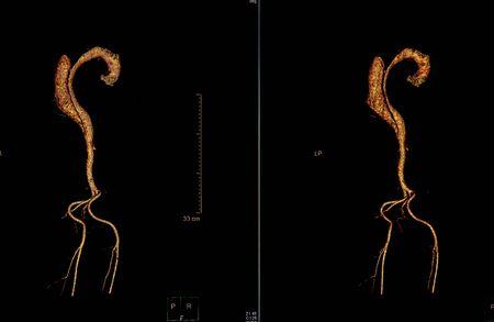 Computertomographie-Angiographie, CTA des Ganzkörperscans mit 3D-Rekonstruktion. CT-Angiographie zur Bestimmung von Gefäßerkrankungen