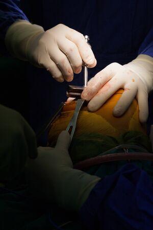 Équipe de médecins travaillant à la salle d'opération à l'hôpital. Le chirurgien effectue une arthroplastie totale du genou. Banque d'images