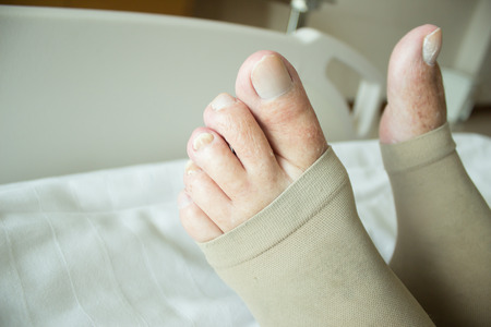 compression: Close Up Shot Of Deep Vein Thrombosis Stockings Stock Photo