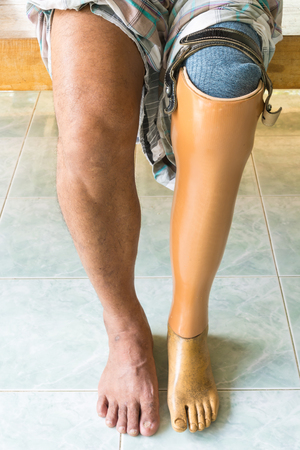 limb: Prosthetic leg Stock Photo