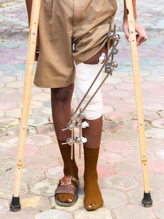 splint: fotos de f�rula pie para el tratamiento de las lesiones de los huesos rotos